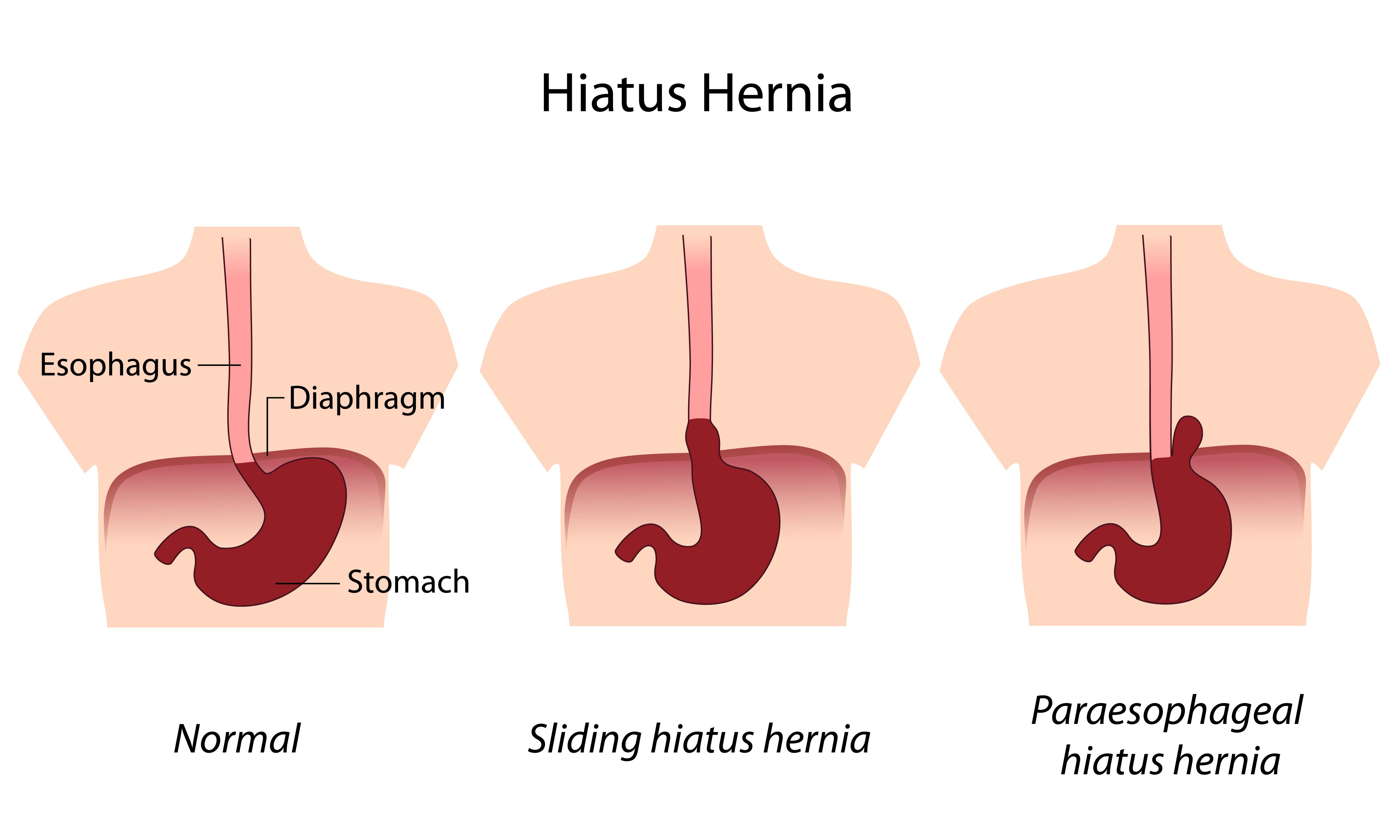 Causes of Left Side Abdominal Stomach Pain  Health Hype
