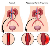 aaa-brushnoj-aorty