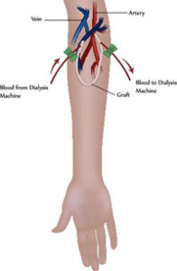 arteriovenoznyj-shunt