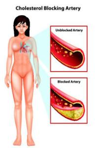 coronary-angioplasty200