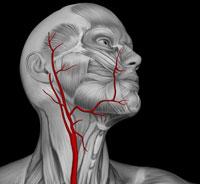 sonnaya-angioplasty200